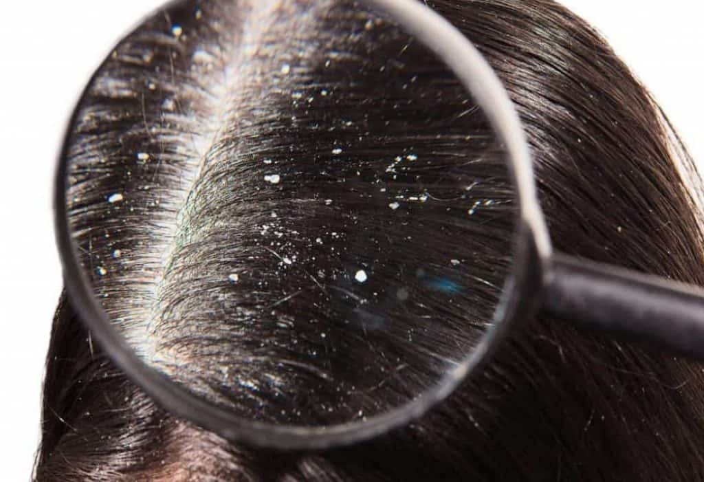 Natural Home Remedies for Dandruff and Natural Scalp Health