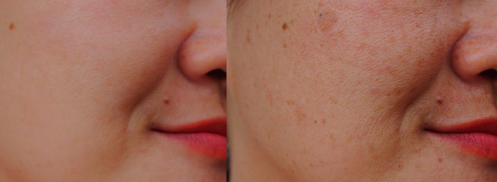 The Best Natural Home Remedies for Spots – Get Rid of Pimples, Zits and Other Blemishes!