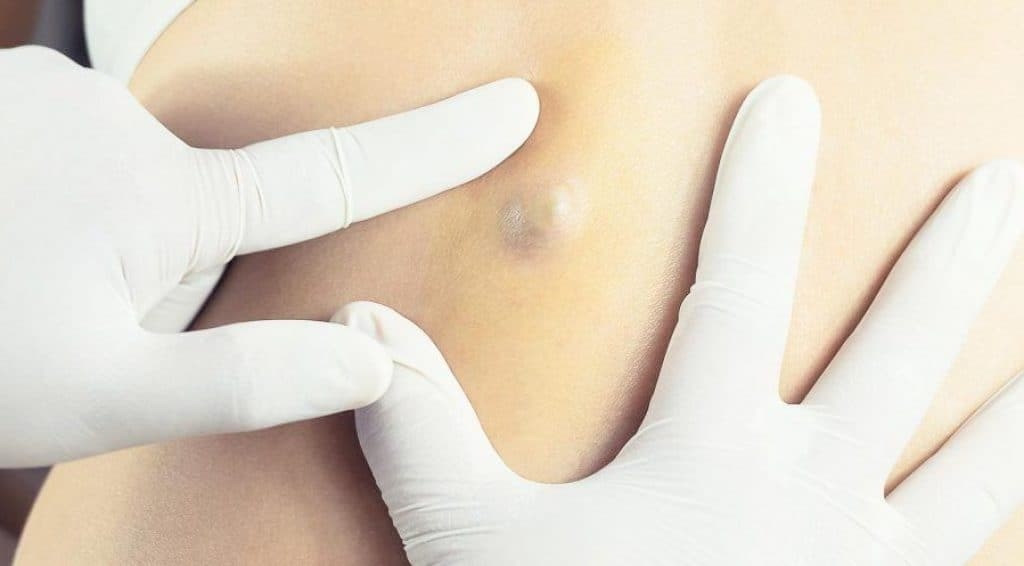 Sebaceous Cyst Home Treatment – Get Rid of Your Cyst the Easy Way!