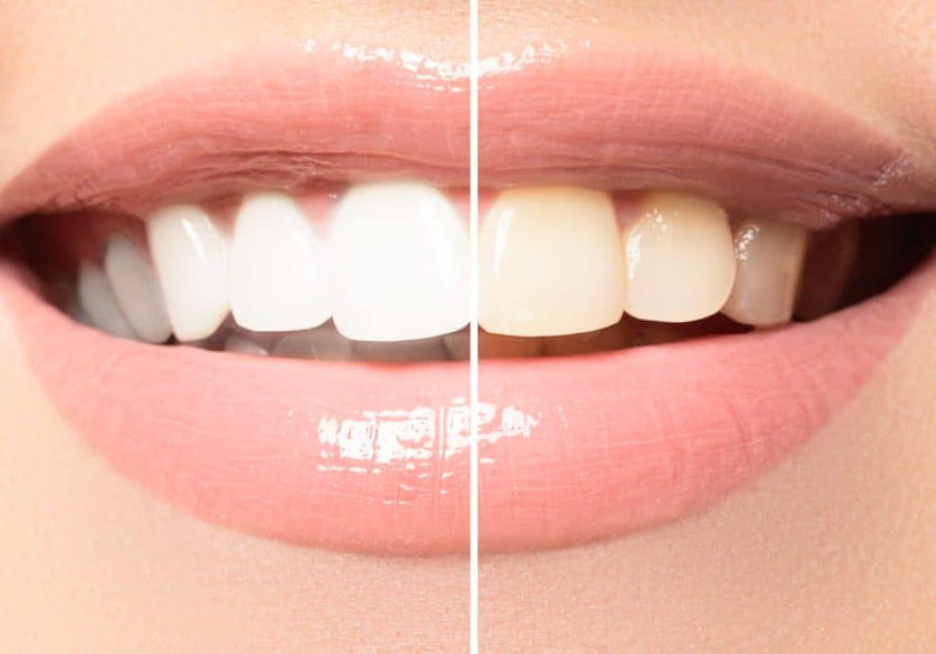 The Most Effective Home Remedies for DIY Teeth Whitening
