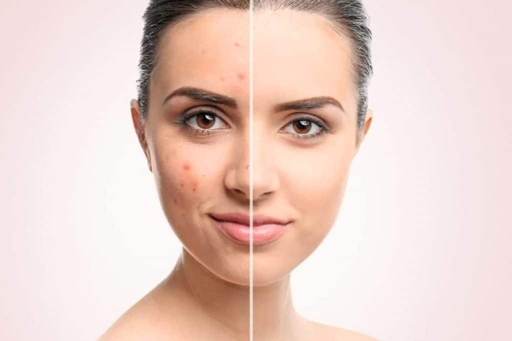 Most Effective Natural Home Remedies to Treat Acne and Rejuvenate the Skin