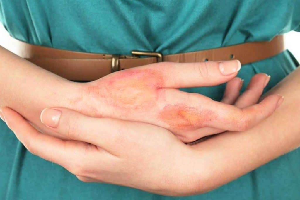 Natural and Soothing Home Remedies for Non-Complicated Burns