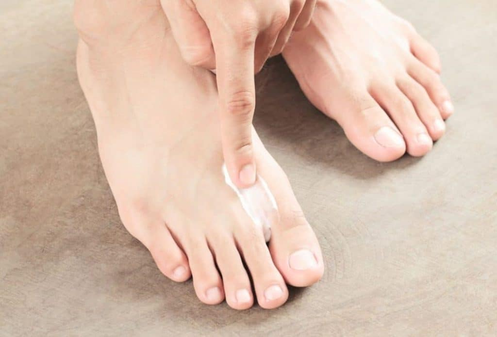 Relieve Athlete's Foot with These Top Home Treatments