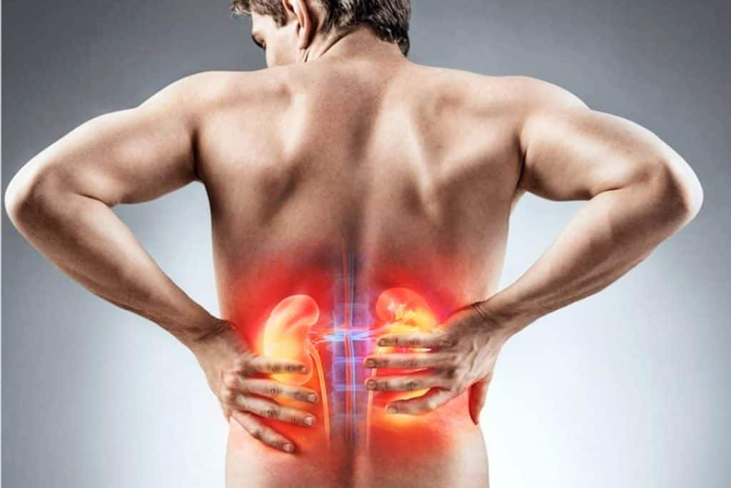 Home Remedies for Kidney Stones – Stop the Pain With This Natural Cure